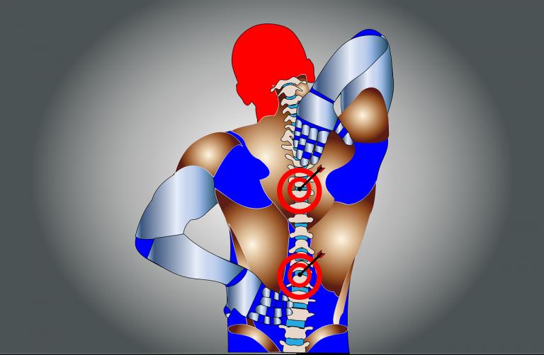 back pain, pain, spine-5318474.jpg